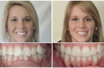 Фото до и после брекетов у взрослых