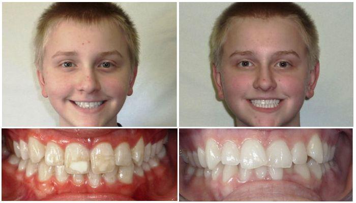 Фото до и после брекетов у детей