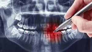 Ортопантомограмма зубов, что это такое?