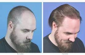 Андрогенная алопеция: особенности пересадки волос методом FUE